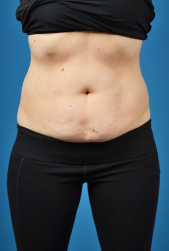 35-44 year old woman treated with SculpSure after 3414100