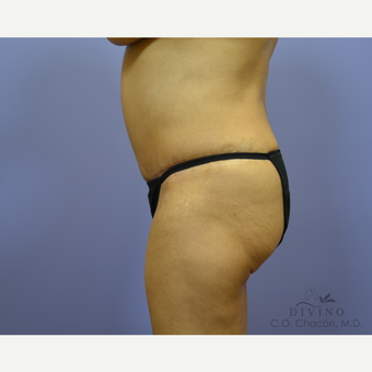 55-64 year old woman treated with Tummy Tuck after 3422087