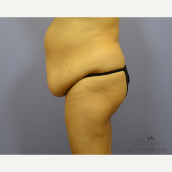 55-64 year old woman treated with Tummy Tuck before 3422087
