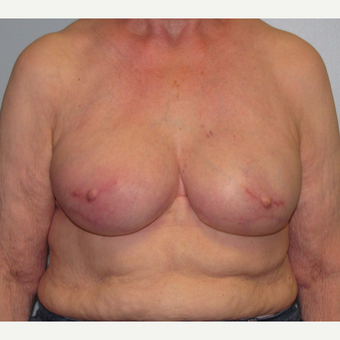 77 year old woman treated with Tissue Expander/Implant Breast Reconstruction after 3097651