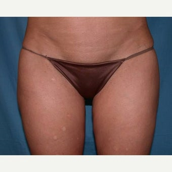 Liposuction after 1594752
