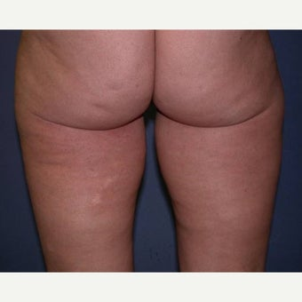 Liposuction 1594752