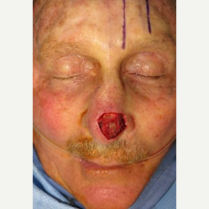 55-64 year old man treated with Mohs Surgery before 3389235