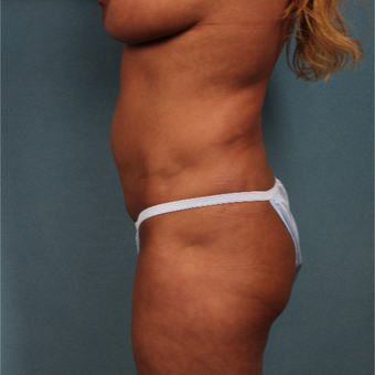 45-54 year old woman treated with Tummy Tuck before 3325744