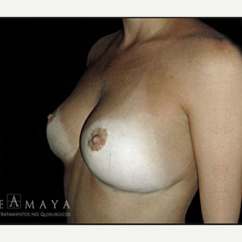 25-34 year old woman treated with Breast Reduction after 3418194