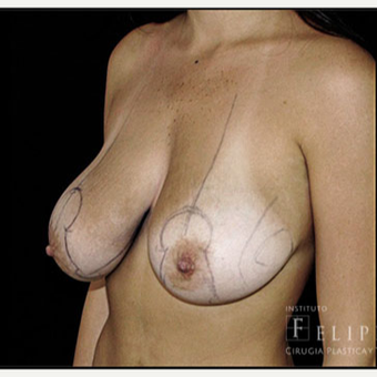 25-34 year old woman treated with Breast Reduction before 3418194