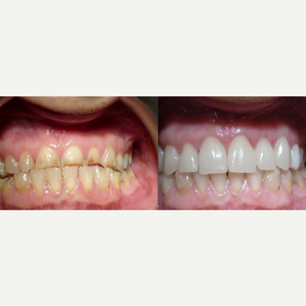 45-54 year old man treated with Braces