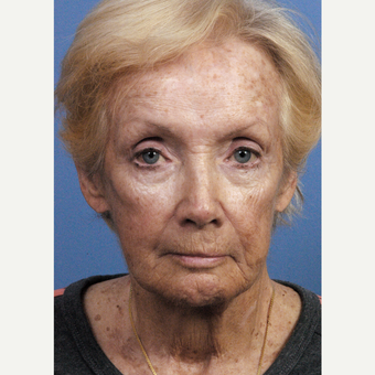 75 and up year old woman treated with Chemical Peel before 3761450