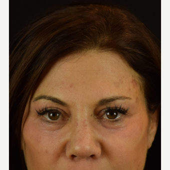 Eye Opener - Upper Lid Blepharoplasty with Laser Resurfacing after 3523763