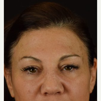 Eye Opener - Upper Lid Blepharoplasty with Laser Resurfacing before 3523763