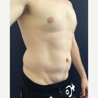 35-44 year old man treated with Mini Tummy Tuck and Liposuction chest, waist, back before 3848435
