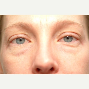 42 year old woman treated with Eye Bags Treatment before 2490627