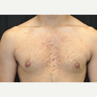 17 or under year old man treated with Acne Treatment after 3218247