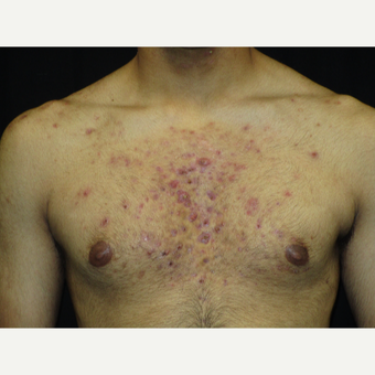 17 or under year old man treated with Acne Treatment before 3218247