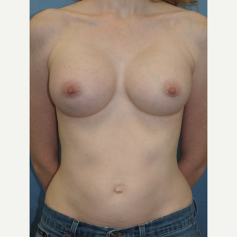 32 year old woman treated with Breast Augmentation with Gummy Bear style highly cohesive implants after 3193227
