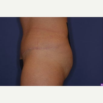 45-54 year old woman treated with Tummy Tuck 1538430