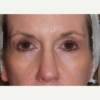 Eyelid Surgery-Bilateral Upper and Lower Blepharoplasty after 1832927