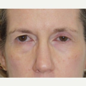 Eyelid Surgery-Bilateral Upper and Lower Blepharoplasty before 1832927