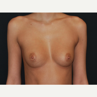18-24 year old woman treated with Breast Implants before 3651176
