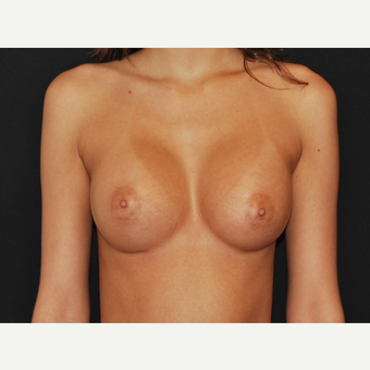 18-24 year old woman treated with Breast Implants after 3651176