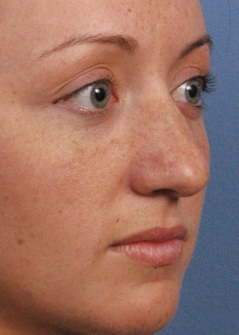 22 year old woman treated with Rhinoplasty before 2107984