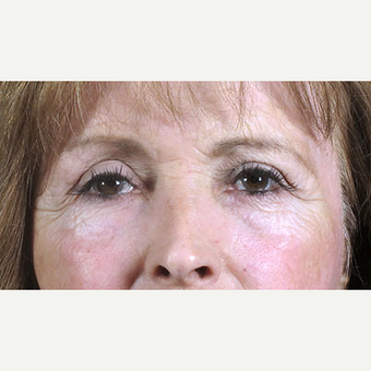 55-64 year old woman treated with Eyelid Surgery after 3213286