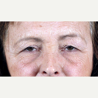 55-64 year old woman treated with Eyelid Surgery before 3213286