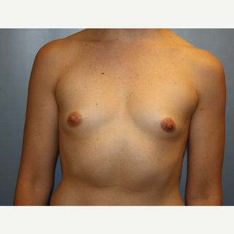 35-44 year old woman treated with Breast Augmentation before 3684820