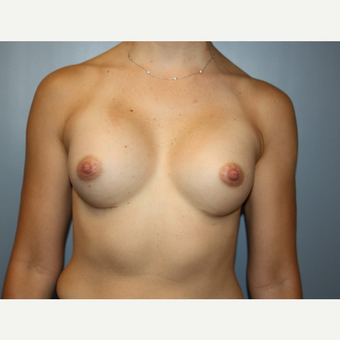 35-44 year old woman treated with Breast Augmentation after 3684820