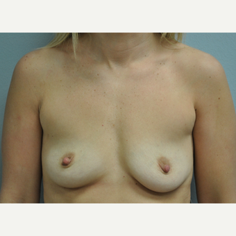 35-44 year old woman treated with Breast Augmentation before 3327021