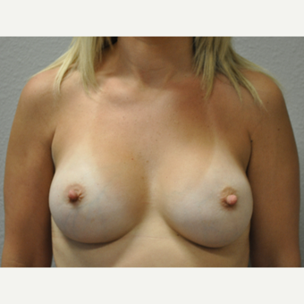 35-44 year old woman treated with Breast Augmentation after 3327021