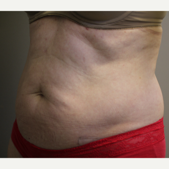 45-54 year old woman treated with SculpSure before 3015141