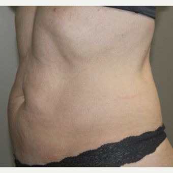 45-54 year old woman treated with SculpSure after 3015141