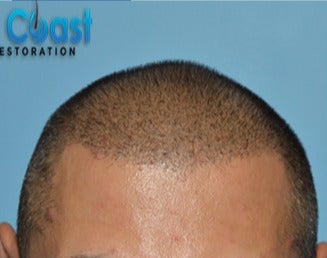 35-44 year old man treated with FUE Hair Transplant after 3604674