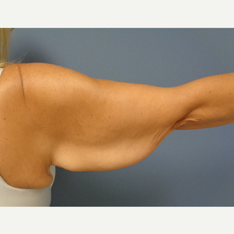 35-44 year old woman treated with Arm Lift before 3747744