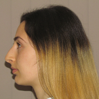 18-24 year old woman treated with Rhinoplasty before 3679737