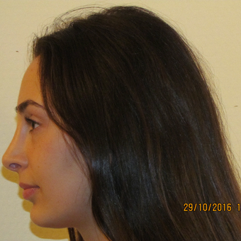 18-24 year old woman treated with Rhinoplasty after 3679737