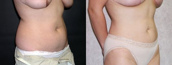Liposuction of the Abdomen and Flanks 336130