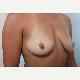 Breast Augmentation before 3345511