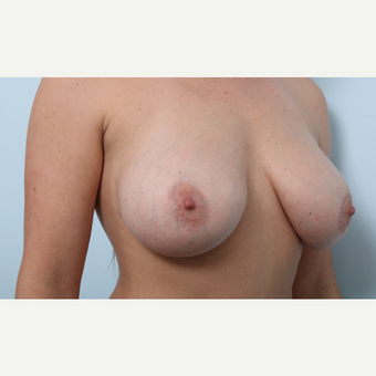Breast Augmentation after 3345511