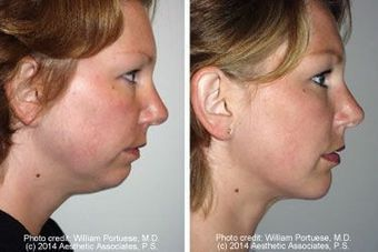 Liposuction of chin with a chin implant before 6805