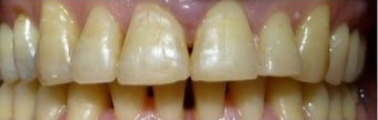 Fixing teeth that protrude using Braces  after 3031536
