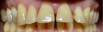 Fixing teeth that protrude using Braces  before 3031536