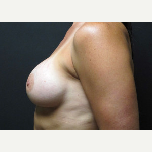 35-44 year old woman treated with Breast Augmentation after 2988057
