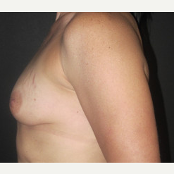 35-44 year old woman treated with Breast Augmentation before 2988057