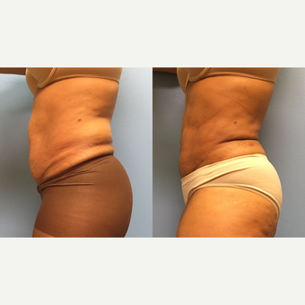 62 year old woman treated with Liposuction of the abdomen and waist after 3174525