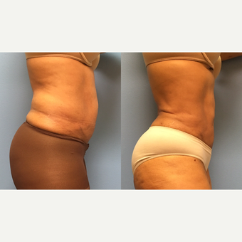 62 year old woman treated with Liposuction of the abdomen and waist before 3174525