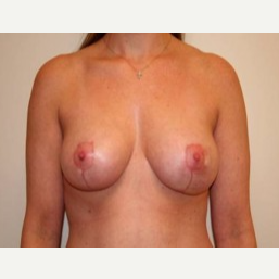 25-34 year old woman treated with Breast Lift after 3339191