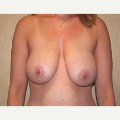 25-34 year old woman treated with Breast Lift before 3339191