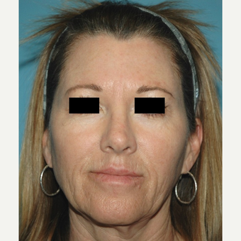 55-64 year old woman treated with Microneedling after 2882799